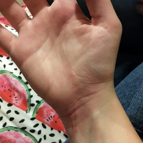 Bruised hand caused by a tic attack, tourette's syndrome